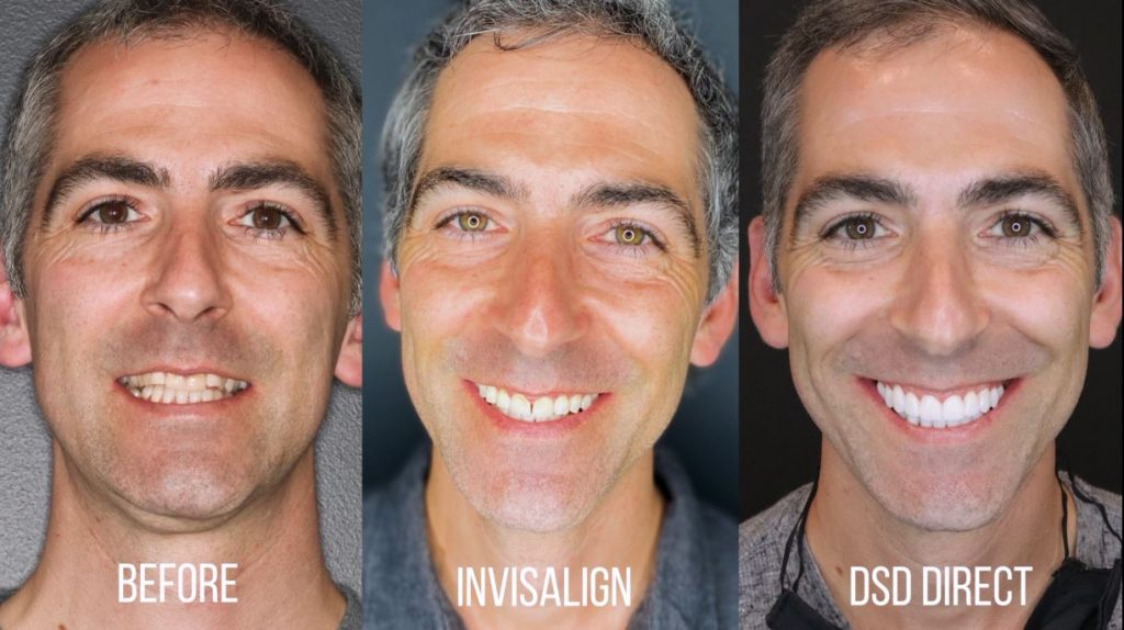 before and after invisalign dsd