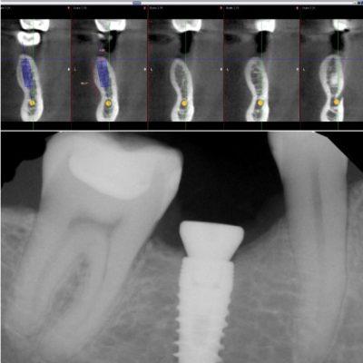 Implant Photo
