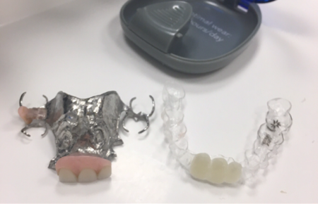 invisalign partial